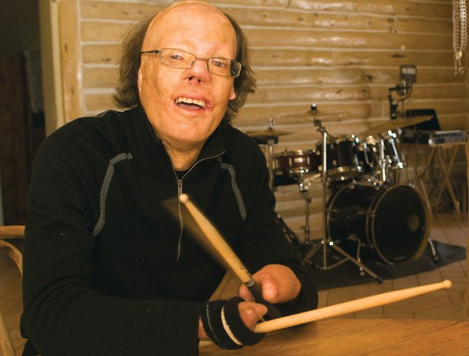 Dan Caro, a New Orleans-based drummer living in Steamboat Springs, will give a presentation this evening at Bud Werner Memorial Library. At age 2, he was badly burned in a fire, losing both of his hands.